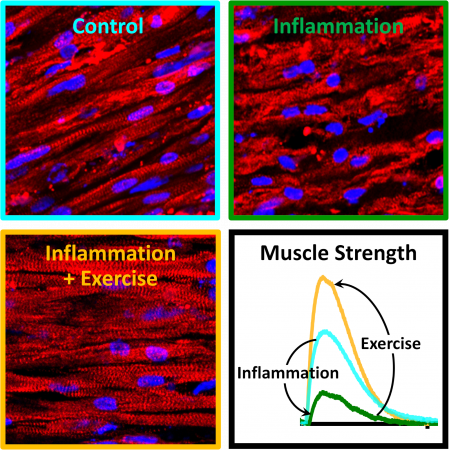 Long, thin, well-defined muscle fibers (top left) are in shambles after prolonged inflammation (top right), but maintain their structure (bottom left) and strength (bottom right) when exercised during the inflammation.